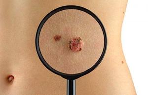 Белгородцев бесплатно проверят на раковую опухоль