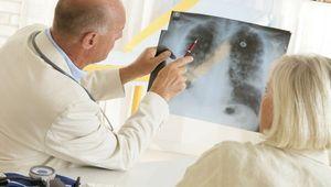 Смертность от онкологии растет в Белгородской области