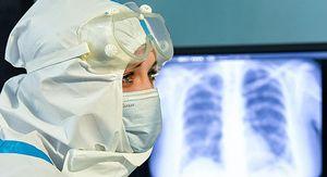 В Курской области за неделю пневмонию диагностировали у 428 человек