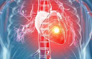 Ученые нашли способ лечения миокарда с помощью программируемого сердца