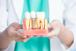 Имплантация зубов по доступным ценам в Перово
