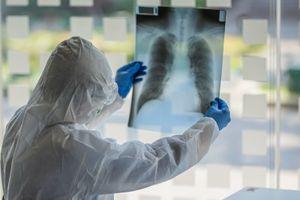 В Свердловской области за сутки выявили 496 случаев коронавируса