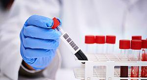 В Свердловской области за сутки выявили 534 случая коронавируса